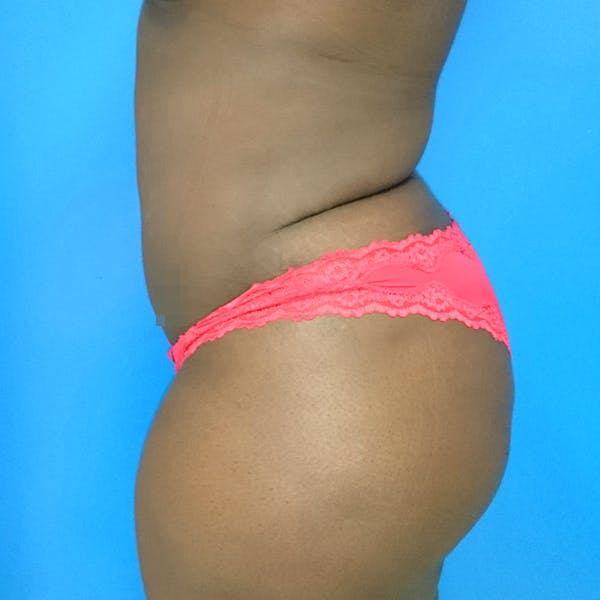 Abdominal Liposuction Gallery - Patient 3776647 - Image 6