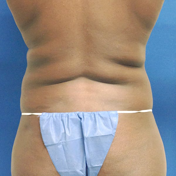 Abdominal Liposuction Gallery - Patient 3776647 - Image 7