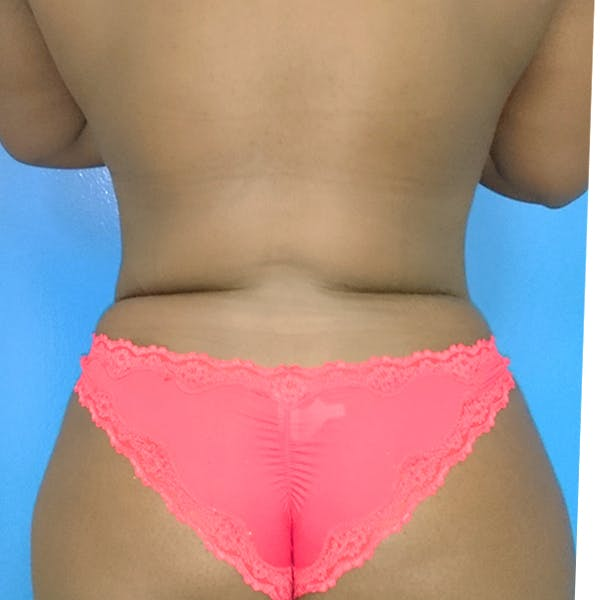 Abdominal Liposuction Gallery - Patient 3776647 - Image 8