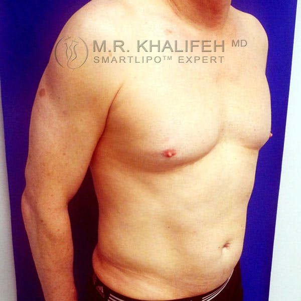 Male Liposuction Gallery - Patient 3776697 - Image 4