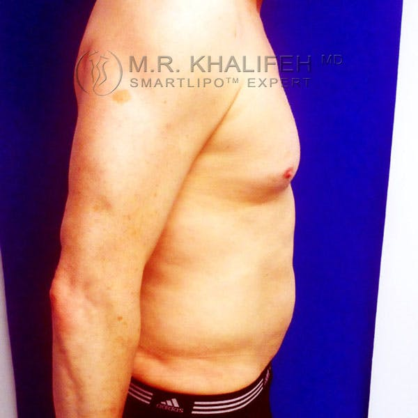Male Liposuction Gallery - Patient 3776697 - Image 6