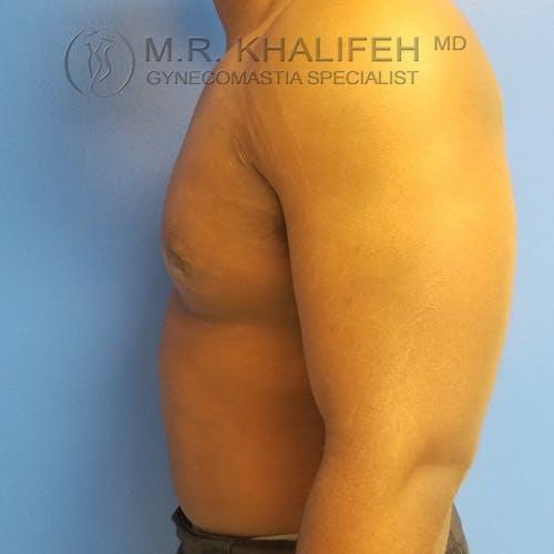 Gynecomastia Gallery - Patient 3776672 - Image 10