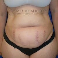 Abdominal Liposuction Gallery - Patient 3776737 - Image 1