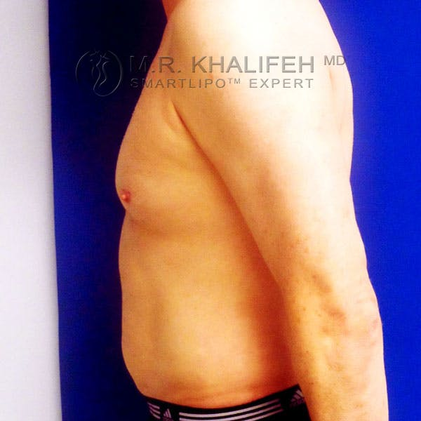 Male Liposuction Gallery - Patient 3776697 - Image 8