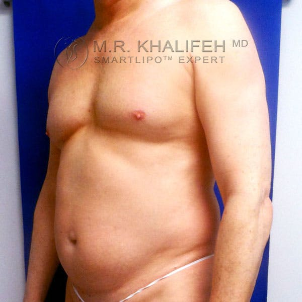 Male Liposuction Gallery - Patient 3776697 - Image 9