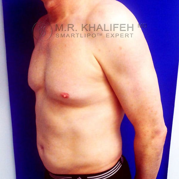 Male Liposuction Gallery - Patient 3776697 - Image 10