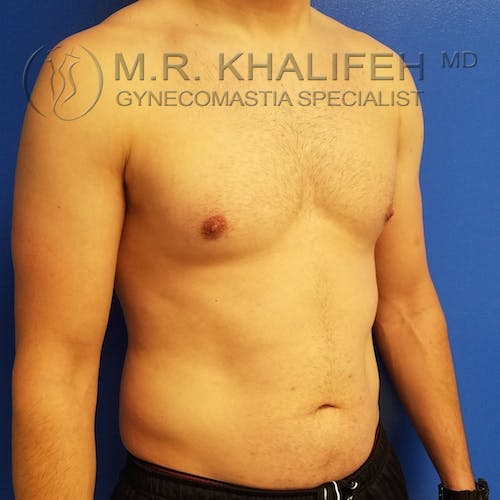 Gynecomastia Gallery - Patient 3776771 - Image 4