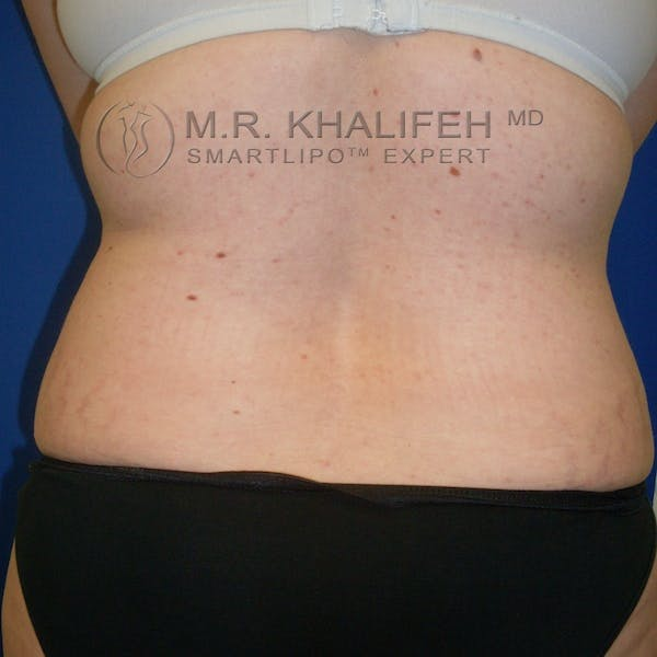 Abdominal Liposuction Gallery - Patient 3776737 - Image 7