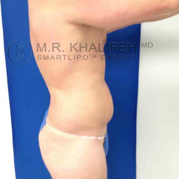Male Liposuction Gallery - Patient 3776769 - Image 3