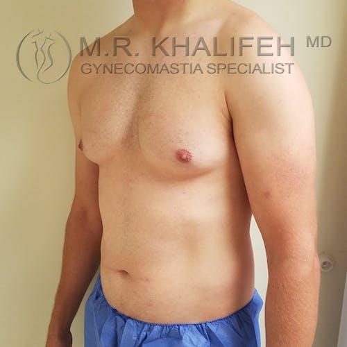 Gynecomastia Gallery - Patient 3776771 - Image 7