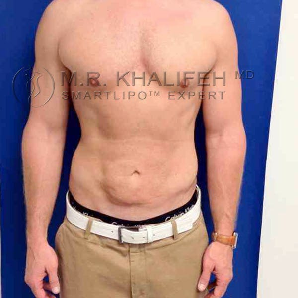 Male Liposuction Gallery - Patient 3776769 - Image 6