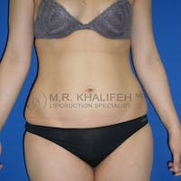 Abdominal Liposuction Gallery - Patient 3776804 - Image 1