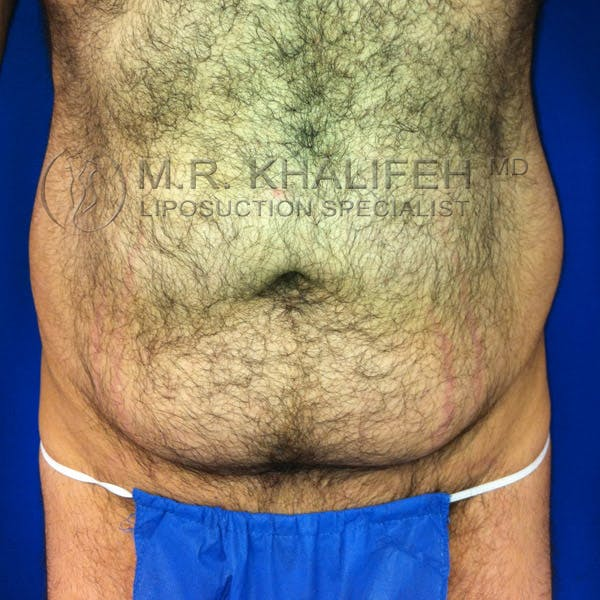 Male Liposuction Gallery - Patient 3776859 - Image 1