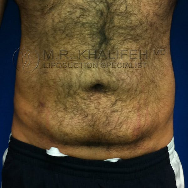 Male Liposuction Gallery - Patient 3776859 - Image 2