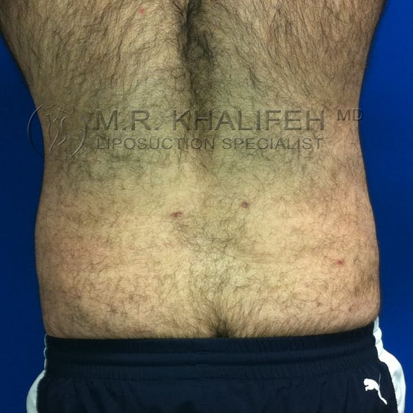 Male Liposuction Gallery - Patient 3776859 - Image 6
