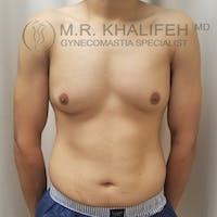 Gynecomastia Gallery - Patient 3776904 - Image 1