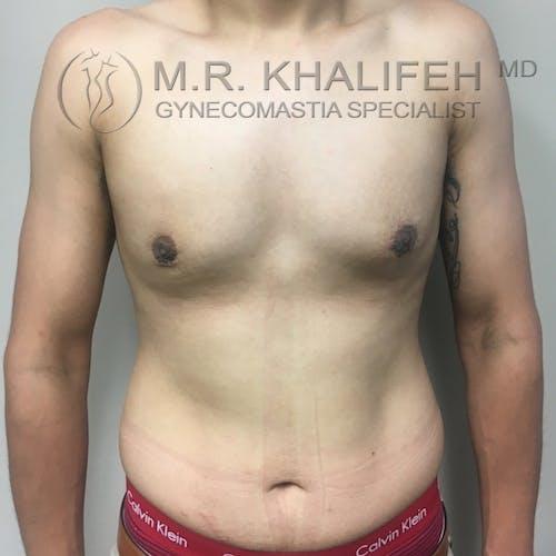 Gynecomastia Gallery - Patient 3776904 - Image 2