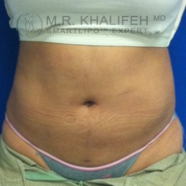 Abdominal Liposuction Gallery - Patient 3776944 - Image 2