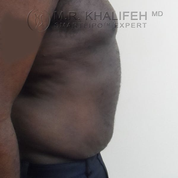 Male Liposuction Gallery - Patient 3776953 - Image 6