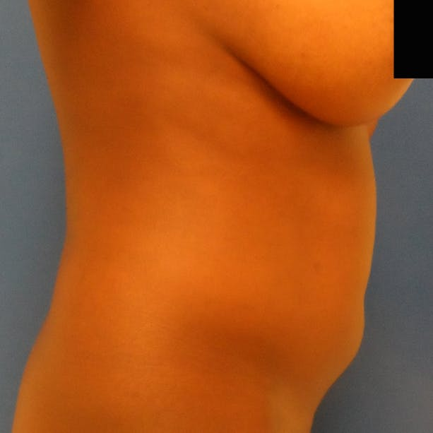 Abdominal Liposuction Gallery - Patient 3777027 - Image 5