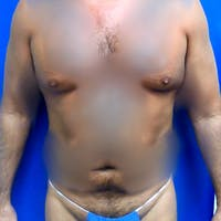 Male Liposuction Gallery - Patient 3777072 - Image 1