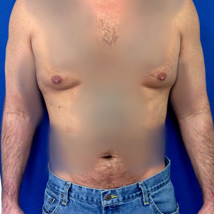 Male Liposuction Gallery - Patient 3777072 - Image 2