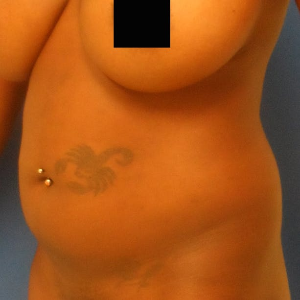 Abdominal Liposuction Gallery - Patient 3777027 - Image 7