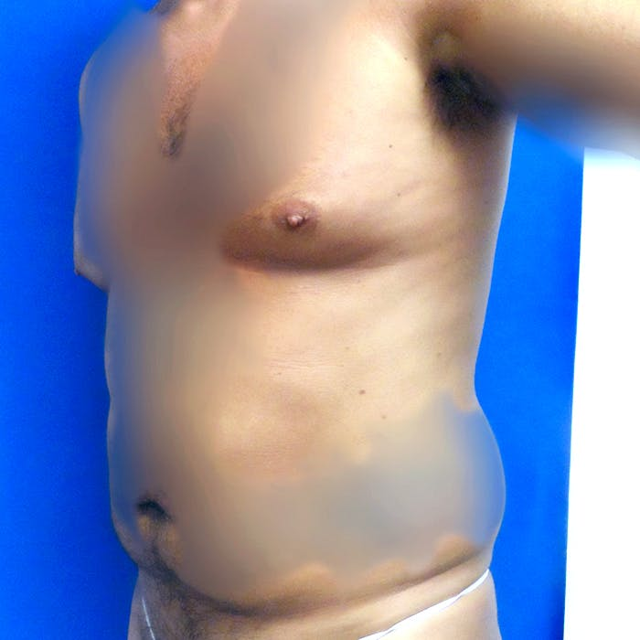 Male Liposuction Gallery - Patient 3777072 - Image 3