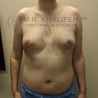 Gynecomastia Gallery - Patient 3777071 - Image 1