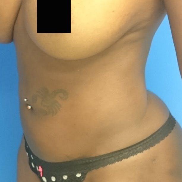 Abdominal Liposuction Gallery - Patient 3777027 - Image 8