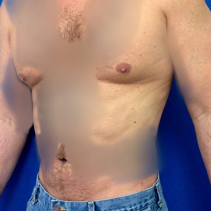 Male Liposuction Gallery - Patient 3777072 - Image 4
