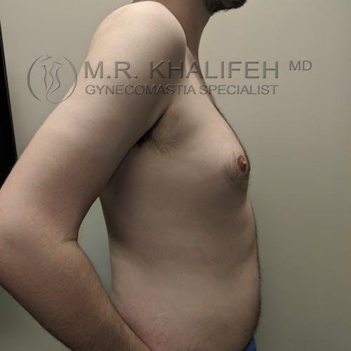Gynecomastia Gallery - Patient 3777071 - Image 3