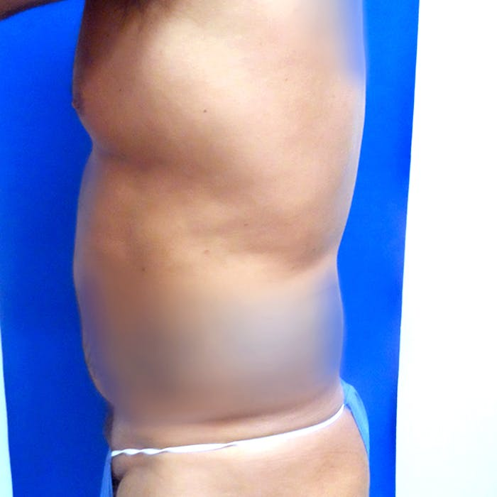 Male Liposuction Gallery - Patient 3777072 - Image 5