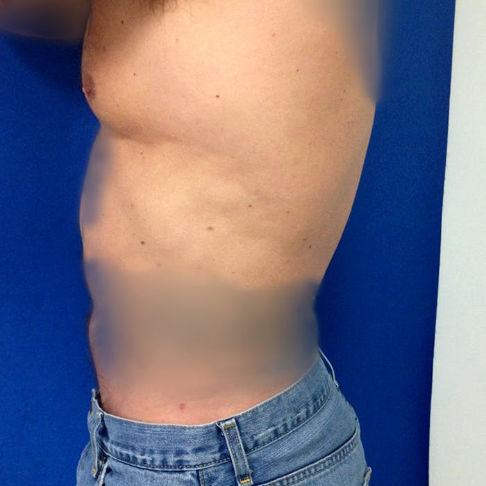 Male Liposuction Gallery - Patient 3777072 - Image 6