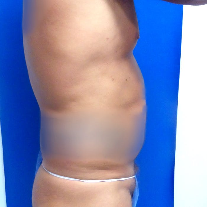 Male Liposuction Gallery - Patient 3777072 - Image 9