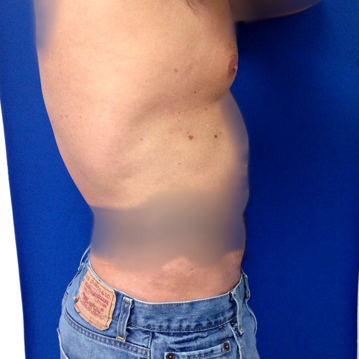 Male Liposuction Gallery - Patient 3777072 - Image 10