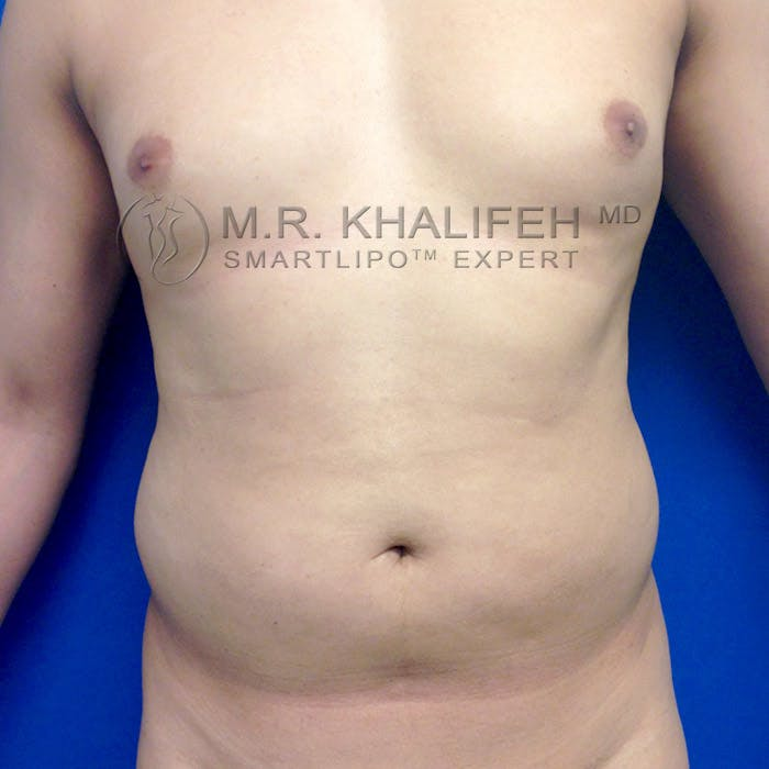 Male Liposuction Gallery - Patient 3777168 - Image 1