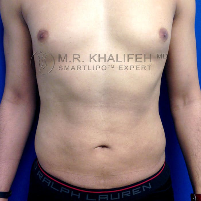 Male Liposuction Gallery - Patient 3777168 - Image 2