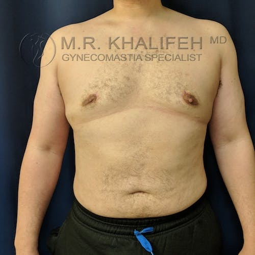 Gynecomastia Gallery - Patient 3777144 - Image 2