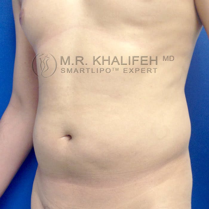 Male Liposuction Gallery - Patient 3777168 - Image 3