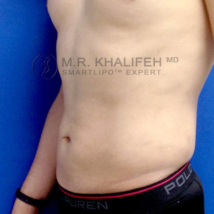 Male Liposuction Gallery - Patient 3777168 - Image 4