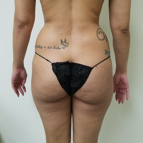 Abdominal Liposuction Gallery - Patient 3777132 - Image 5
