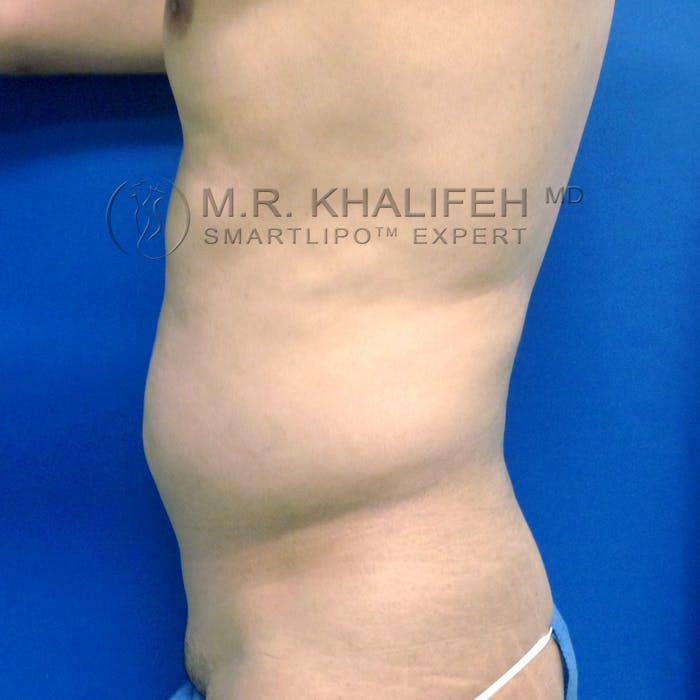 Male Liposuction Gallery - Patient 3777168 - Image 5