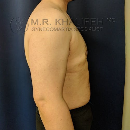 Gynecomastia Gallery - Patient 3777144 - Image 6