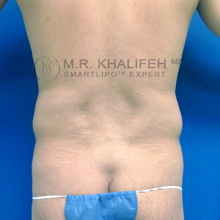 Male Liposuction Gallery - Patient 3777168 - Image 7