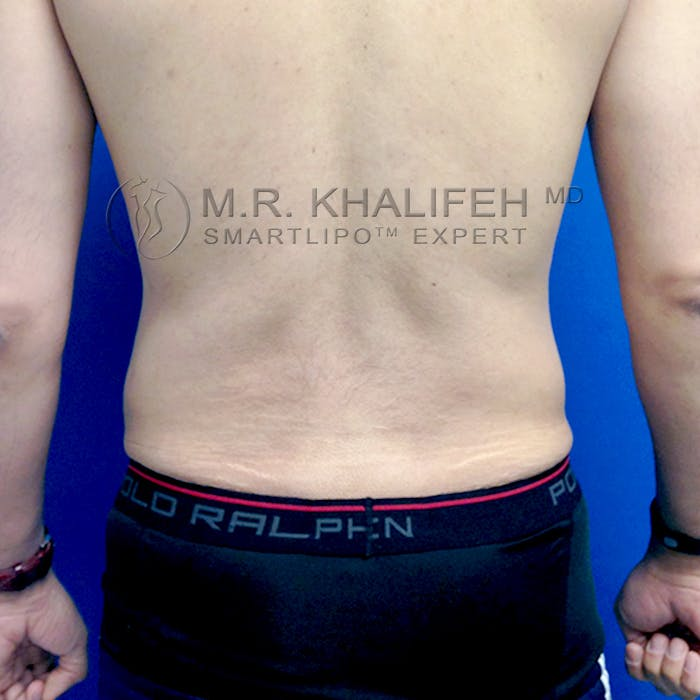 Male Liposuction Gallery - Patient 3777168 - Image 8