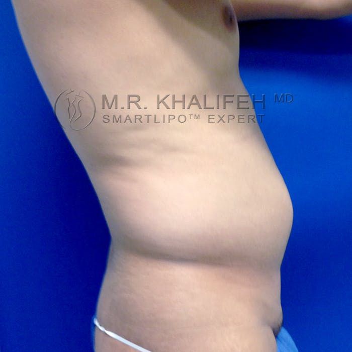 Male Liposuction Gallery - Patient 3777168 - Image 9