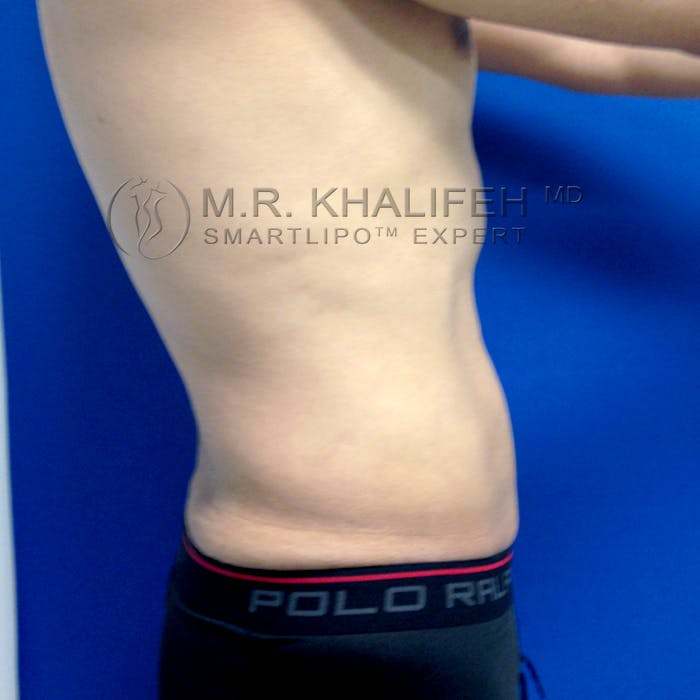 Male Liposuction Gallery - Patient 3777168 - Image 10