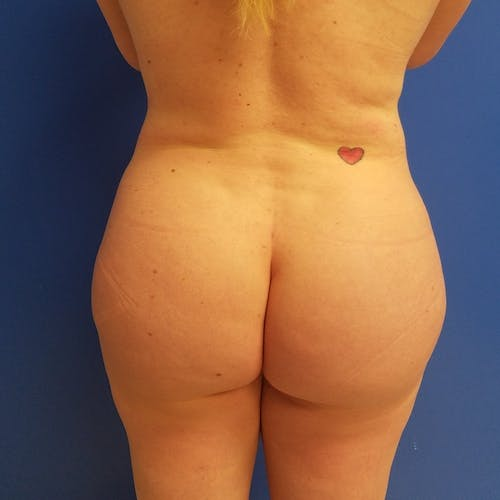 Abdominal Liposuction Gallery - Patient 3777200 - Image 4