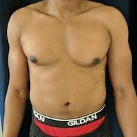 Gynecomastia Gallery - Patient 3777212 - Image 1
